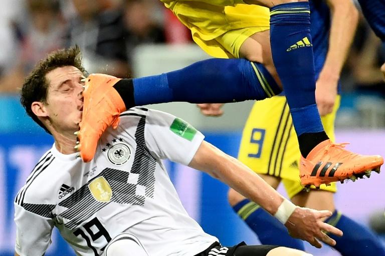 Rudy sufrió fractura de nariz mientras Hummels se recupera en Alemania